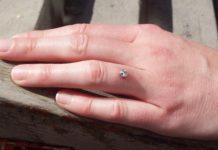 Piercing di Fidanzamento (microdermal finger): che cos'è e come si applica