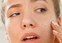 Pelle Disidratata: che cos'è e come curarla con rimedi efficaci