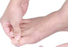 Unghia Incarnita: come curarla e prevenirla con rimedi naturali