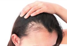 Capelli Grassi: causa e rimedi naturali per prevenire