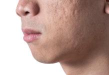 Come alleviare e rimuovere cicatrici da acne, cicatrice chirurgica o da taglio: cure e rimedi naturali