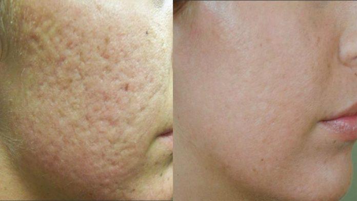 Come chiudere i pori del viso:rimedi astringenti più efficaci