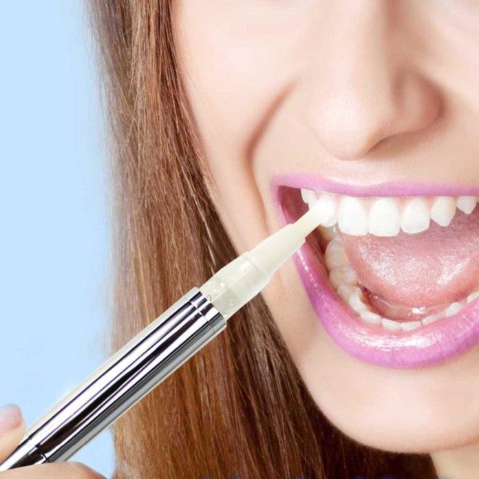 Penna sbiancante per denti: opinioni e consiglisu quale usare e dove comprarla