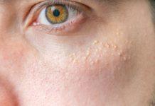 Punti bianchi su viso e pelle: cosa sono e come curarli con rimedi naturali
