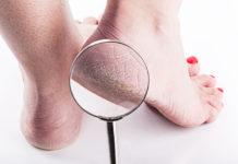 Talloni dei piedi secchi: rimedi naturali per nutrirli e curarli