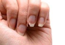 Unghia fragili: causa e rimedi naturali per rinforzarle