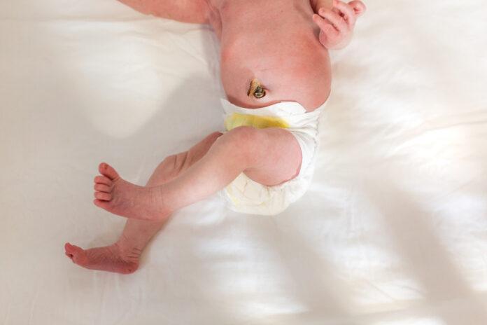 Medicazione e caduta del cordone ombelicale: che cos'è, come eseguire medicazione prima e dopo